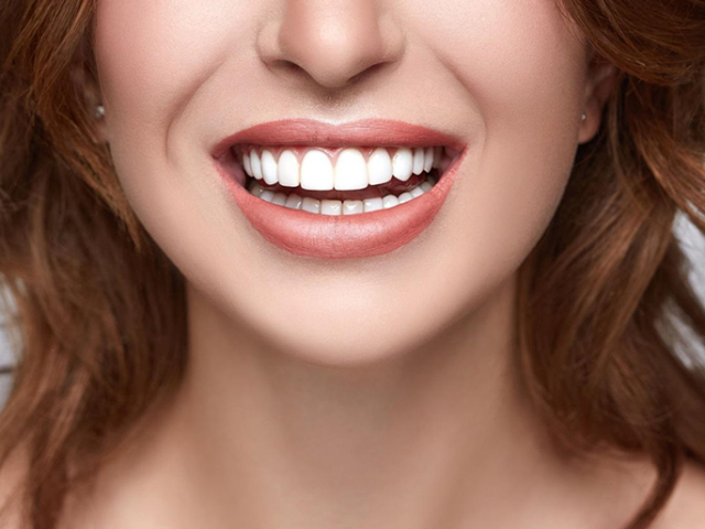 https://studicampagna.it/wp-content/uploads/2021/03/faccette-dentali-640x480.png